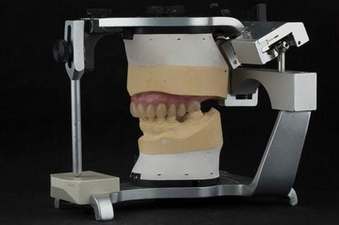 """Figure 73. Definitive denture finished with Molloplast B """"O"""" ring around UR7."""