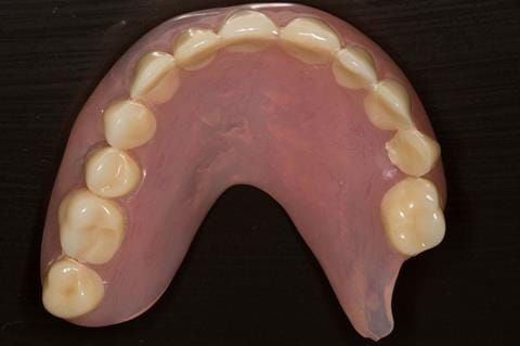 Figure 8. Pre-treatment - poorly fitting acrylic based maxillary partial denture - this denture was not worn