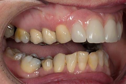 Figure 116. Fitted cobalt chromium based maxillary partial denture with teeth apart. Schottlander Enigmalife teeth.