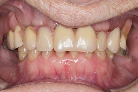 Figure 5. Pre-treatment with poorly fitting cobalt chromium based maxillary partial denture - this was currently worn with the assistance of denture fixative