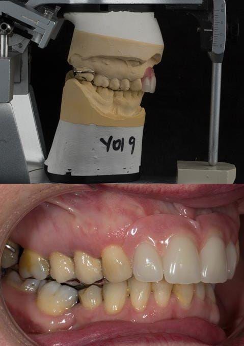 Figure 113. Fitted cobalt chromium based maxillary partial denture replacing upper 2-2 in intercuspal position. Schottlander Enigmalife teeth.