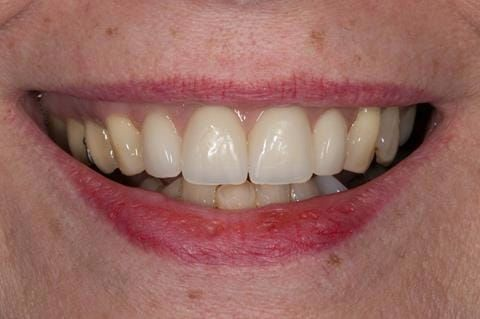 Figure 66. Relined immediate denture replacing maxillary incisors fitted 5 months after extraction.