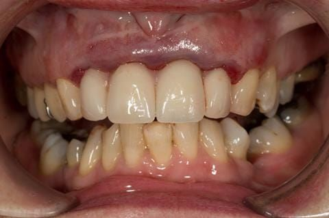 Figure 31. Maxillary immediate denture fitted just after extractionwith teeth apart. Schottlander Enigmalife teeth.