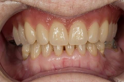 Figure 56. Visit 4 Teeth wax try in with Schottlander Enigmalife teeth in mouth in centric relation position.