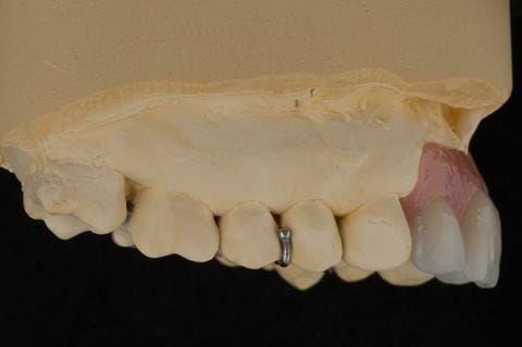 Figure 61. Relined immediate denture on cast.