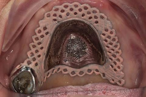 Figure 48. Visit 3 - Cobalt chromium base reinforcement for the maxillary partial denture - Chris Hesketh, Bespoke Frameworks, Chorley, UK.
