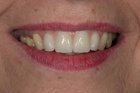 Figure 120. Fitted cobalt chromium based maxillary partial denture replacing upper 2-2. Schottlander Enigmalife teeth.