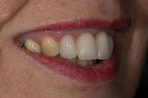 Figure 35. Maxillary immediate denture fitted one week after the extraction appointment.