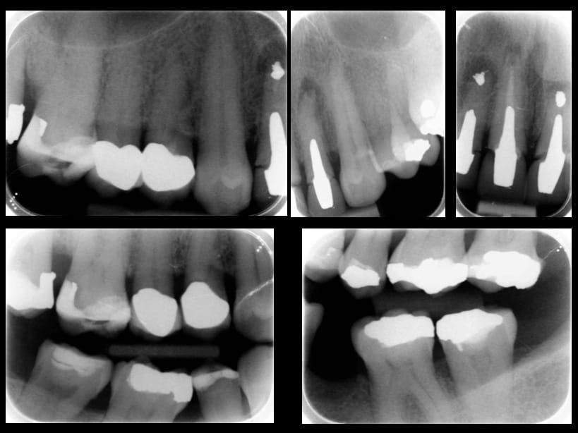 Fig 13. Pre-treatment radiographs. Maxillary incisors with peri-radicular areas. UR2 UL1 retrograde amalgam fillings from previous apicectomies. Large circumferential marginal gaps between the crowns and teeth on UR12, UL12, large posts and cores present.