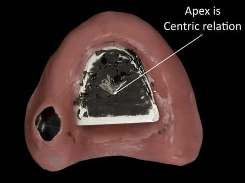 Figure 43. Visit 3 - Central bearing apparatus to record centric relation accurately - maxillary plate. The patient has scribed an arrow shape - the apex is centric relation. A plastic countersink hole is placed and fitted over the apex.