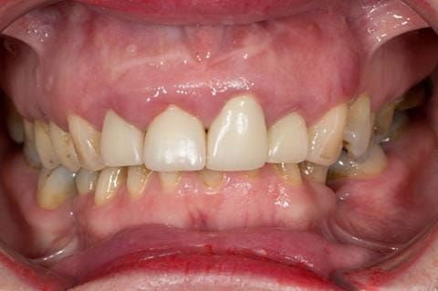 Figure 5. Pre-treatment - upper four incisors with inflammation of the gingivae and mis-match of the gingival levels.