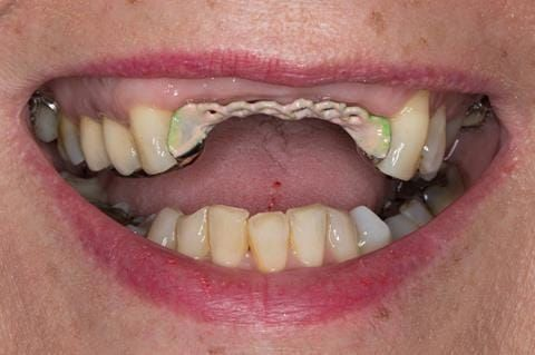 Figure 95. Maxillary cobalt chromium framework trial insertion, checking the fit onto the natural teeth using Occlude spray.