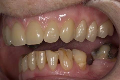 Figure 79. Visit 5 Fitted definitive denture - Schottlander Enigmalife teeth