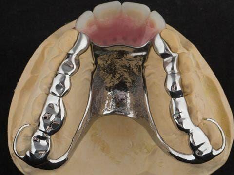 Figure 102. Finished cobalt chromium based maxillary partial denture. (Chris Hesketh, Bespoke Frameworks, Chorley, UK.)