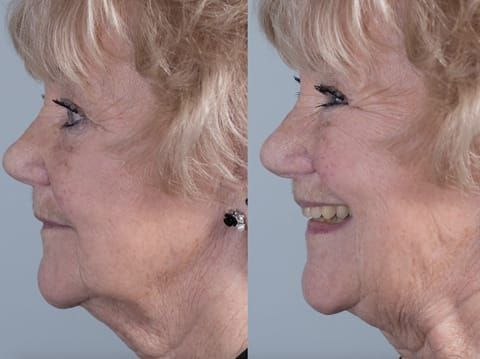 Figure 84. Fitted definitive denture