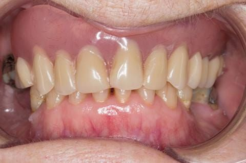 Figure 6. Pre-treatment with poorly fitting acrylic based maxillary partial denture - this denture was not worn by the patient