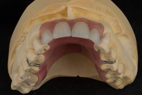 Figure 59. Relined immediate denture on cast.