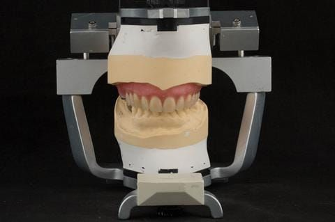Figure 55. Teeth wax try in with Schottlander Enigmalife teeth in centric relation position determined by central bearing apparatus.