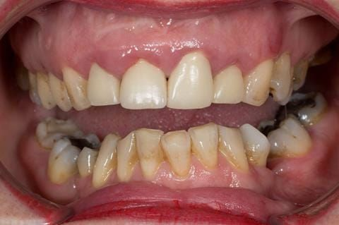 Figure 6. Pre-treatment - upper four incisors with inflammation of the gingivae and mis-match of the gingival levels.