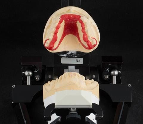 Figure 87. Pattern resin framework prototype of the cobalt chromium connectors to verify fit and occlusal relation - on Denar Mk 2 articulator.