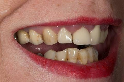 Figure 3. Pre-treatment showing high smile line and aesthetically poor upper incisors