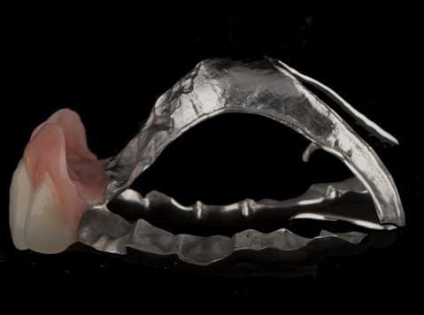 Figure 106. Finished cobalt chromium based maxillary partial denture with Schottlander Enigmalife teeth. Note the thin knife edge flange to blend into the natural gingivae.