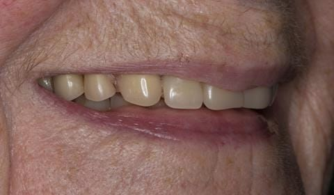 Figure 3. Pre-treatment with poorly fitting cobalt chromium based maxillary partial denture