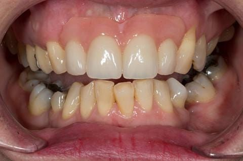 Figure 71. Immediate denture at 11 months post extraction. Ready to start making definitive cobalt chromium based partial denture.