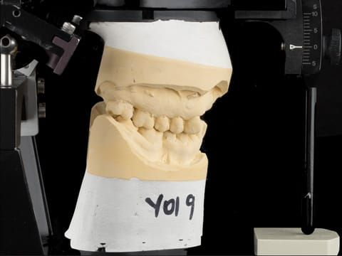 Figure 92. Definitive cast on Denar Mk 2 articulator - maxillary cast mounted using facebow transfer and mandibular cast mounted in intercuspal position.