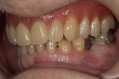 Figure 58. Visit 4 Teeth wax try in with Schottlander Enigmalife teeth in mouth in centric relation position.