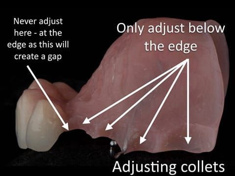 Figure 26. Maxillary immediate partial denture finished. When fitting I always adjust below area where the denture touches the tooth as in the photograph. This prevents a gap forming between the denture and the teeth when fitted - as shown in Figure 32.