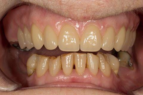 Figure 75. Visit 5 Fitted definitive denture - Schottlander Enigmalife teeth