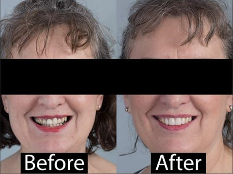 Figure 122. Before and after provision of a cobalt chromium based maxillary partial denture replacing upper 2-2.