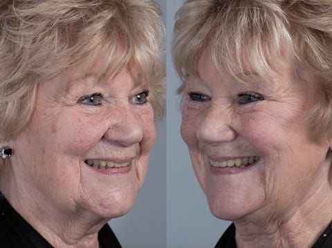 Figure 85. Fitted definitive denture