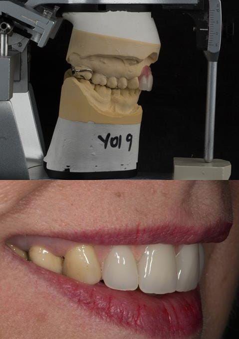 Figure 119. Fitted cobalt chromium based maxillary partial denture replacing upper 2-2 with teeth apart. Schottlander Enigmalife teeth.
