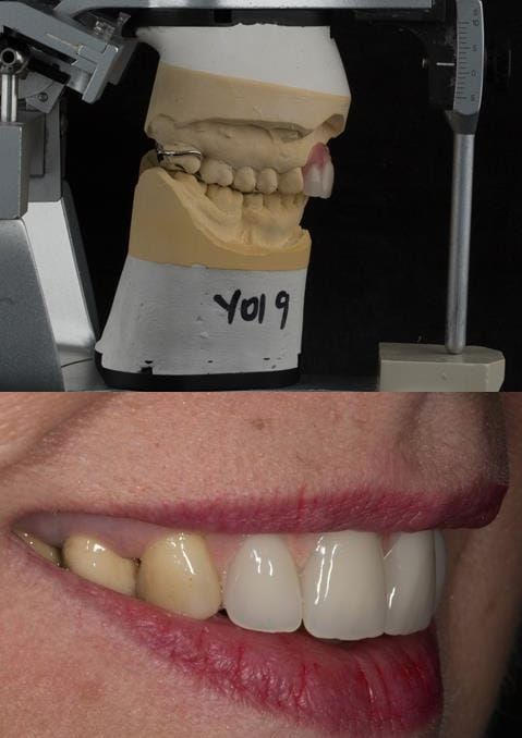 Figure 119. Fitted cobalt chromium based maxillary partial denture replacing upper 2-2 with teeth apart. Schottlander Enigmalife teeth.