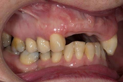 Figure 112. Edentulous ridge 12 months post extraction.