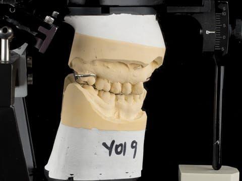 Figure 93. Definitive cast on Denar Mk 2 articulator - maxillary cast mounted using facebow transfer and mandibular cast mounted in intercuspal position with cobalt chromium framework fitted.
