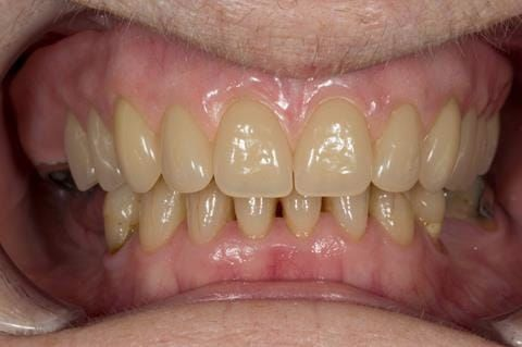 Figure 74. Visit 5 Fitted definitive denture - Schottlander Enigmalife teeth