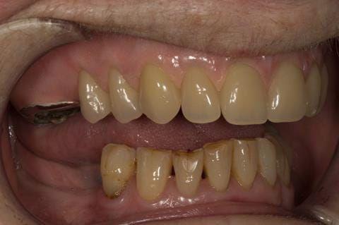 Figure 77. Visit 5 Fitted definitive denture - Schottlander Enigmalife teeth