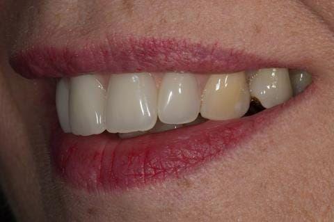 Figure 118. Fitted cobalt chromium based maxillary partial denture replacing upper 2-2 with teeth apart. Schottlander Enigmalife teeth.