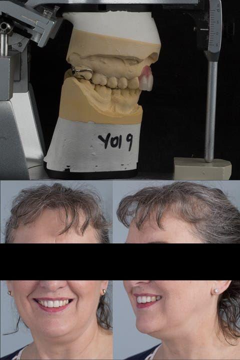Figure 121. Fitted cobalt chromium based maxillary partial denture replacing upper 2-2. Schottlander Enigmalife teeth.