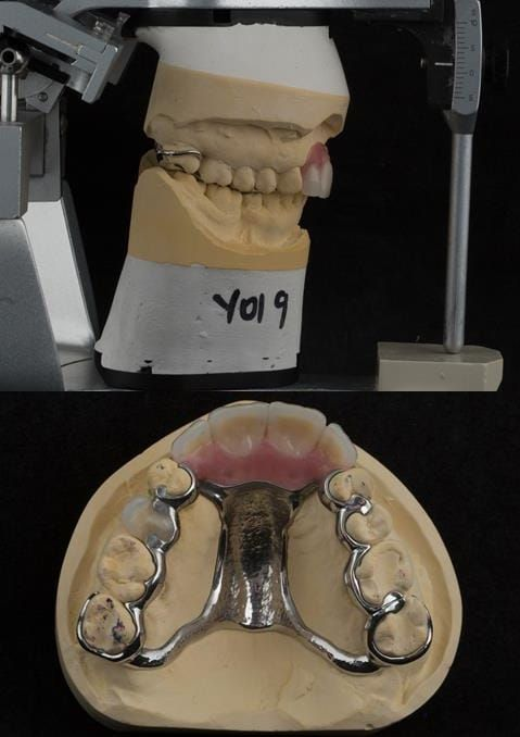 Figure 126. Cobalt chromium based maxillary partial denture from a different case of similar design. The upper right first premolar required removal at a later date. Dental bar designed using a laser welded tag to support the artificial tooth.