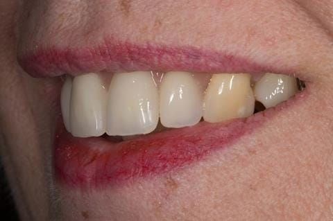Figure 68. Relined immediate denture replacing maxillary incisors fitted 5 months after extraction.