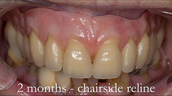 Figure 39 Alveolar resorption has occurred - chairside reline indicated