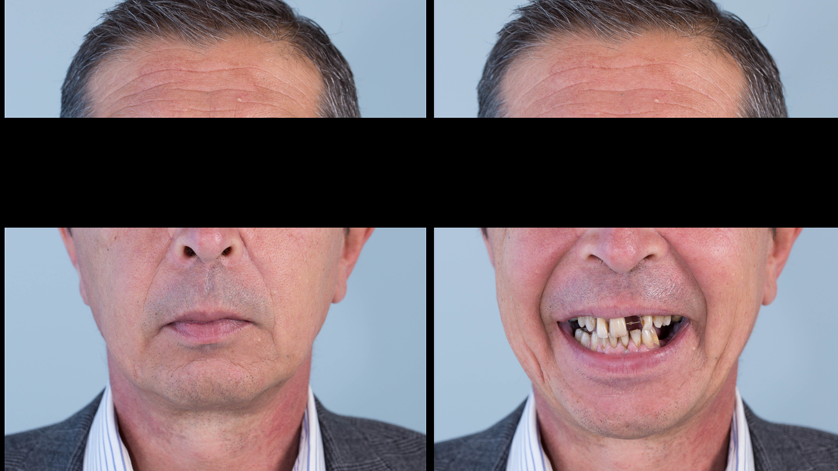 Figure 1 Pre-treatment with generalised periodontitis; stage IV grade C, unstable, risk factors: smoker. Prior to phase one treatment of immediate complete upper denture and immediate mandibular acrylic based partial denture.