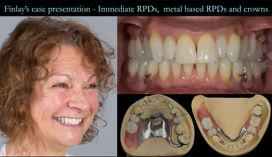 VIDEO - Finlay's fixed and removable prosthodontic case presentation of crowns and metal partial dentures