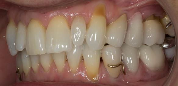 Figure 84 Definitive dentures fitted.