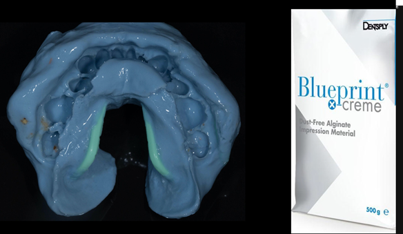 Figure 13 Lower primary impression with Dentsply Blueprint