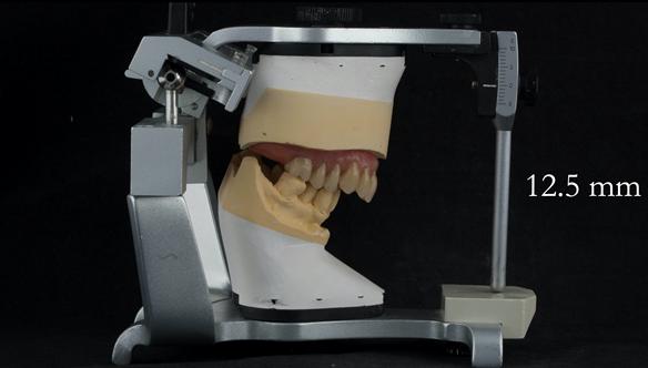 Figure 96 Mk 2 definitive denture finished - 12.5 mm overjet
